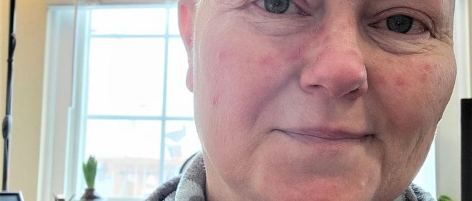 Theresa Goodrich - with zits